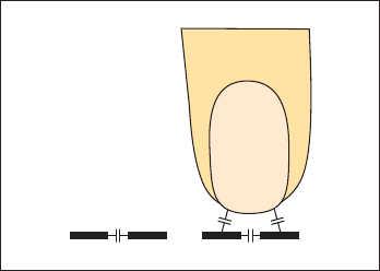 Рис. 1. Емкостный сенсор