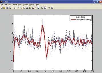 Пример обработки зашумленного сигнала фильтром Баттерворта с нулевой фазой
