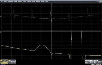 Кардиосигнал, полученный на том же осциллографе Wave Runner HRO 6 Zi
