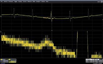 Сигнал, содержащий значительный шум, часть из которого относится к реальному сигналу