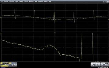 Аналогичный сигнал на том же осциллографе, но с применением высокочастотной фильтрации