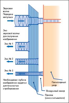 Принцип работы ультразвукового сканера