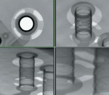 Рис. 8. Контроль качества металлизации переходных отверстий методом рентгеновской инспекции