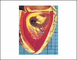 Пример использования гибких печатных плат в зонде, внедренном в модель сердца